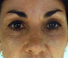 eyelid-after