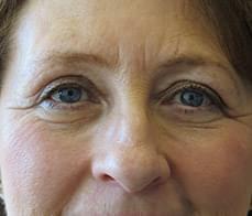 eyelid-correction-1-after