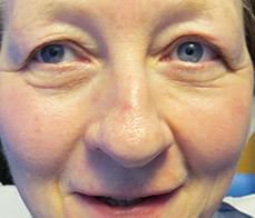eyelid-correction-1-before