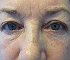 eyelid-correction-2-before