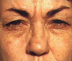 eyelid-correction-3-after