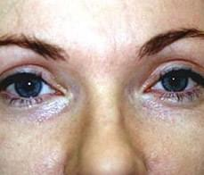 eyelid-correction-4-after