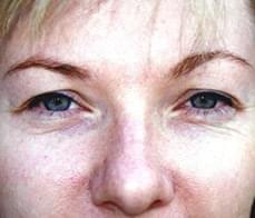 eyelid-correction-4-before