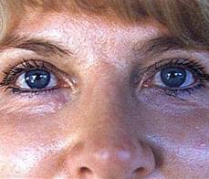 eyelid-correction-5-after