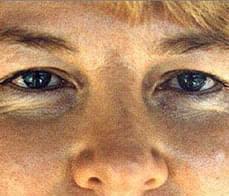 eyelid-correction-5-before
