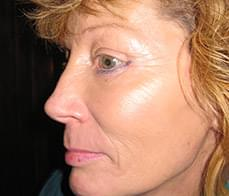 face-neck-lift-1-before
