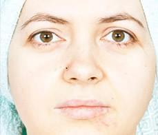 scar-treatment-1-before
