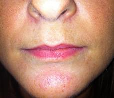lip-enhancement-1-before